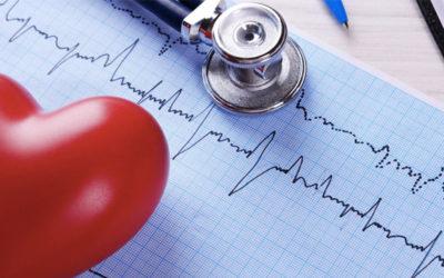 Arritmia Cardíaca: quando é necessário um CDI ou Marcapasso?